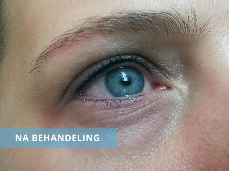 Eyeliner boven en onder