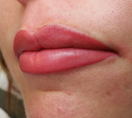 5Full lips permanente ma
