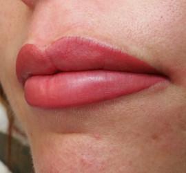 5Full lips permanente ma