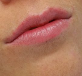 Full lips genezen cosmetic xpert