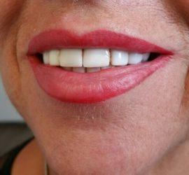 full lips genezen