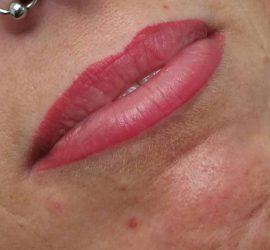 Full Lips Cosmeticxpert