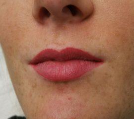 full lips genezen cosmetic xpert 1