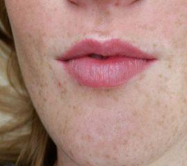 full lips genezen cosmetic xpert