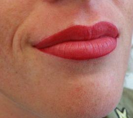 Full lips na cosmetic xpert