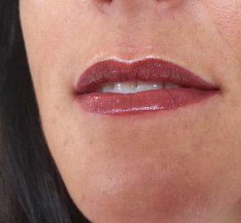 c1Full lips na cosmetic Xpert.