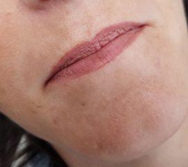 Full lips voor cosmetic xpert