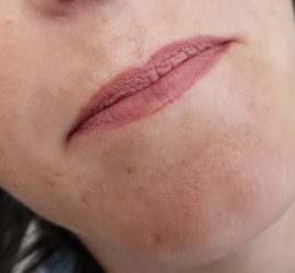 Full lips voor cosmetic xpert