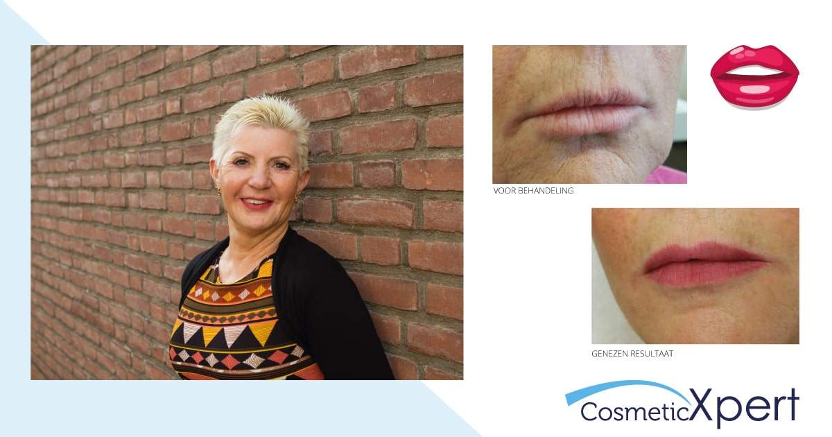 Kitty en haar ervaring met permanente make-up voor de lippen bij Cosmetic Xpert