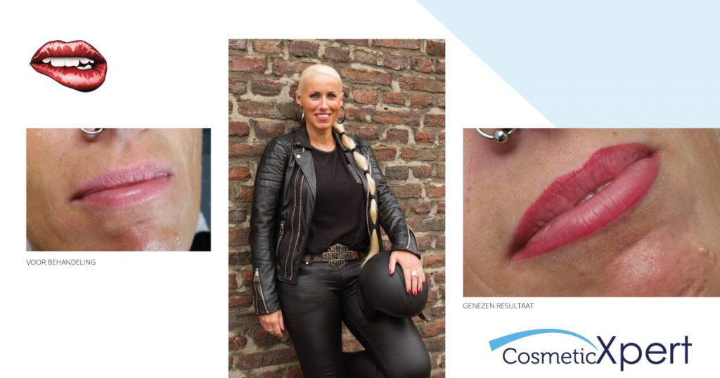Manon en haar ervaring met permanente make-up voor de lippen bij Cosmetic Xpert